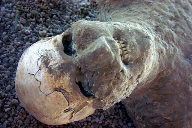 حولهم الله الى صخور..صور للعبره img_3650_pompeii_skull_enhanced.jpg